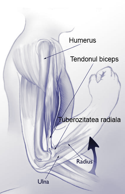 Ruptura tendonului biceps distal