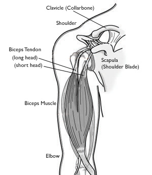 Ruptura tendonului biceps proximal